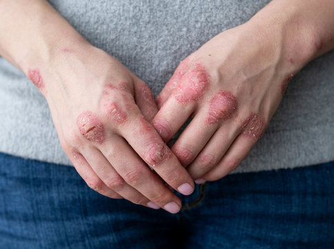 Cracked, flaky skin on the palm of your hand. Dermatological problems of psoriasis. Hard, horny and cracked skin on the finger in a man's hand. Psoriasis, allergy