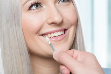 Using a shade guide at womans mouth to check veneer of tooth crown