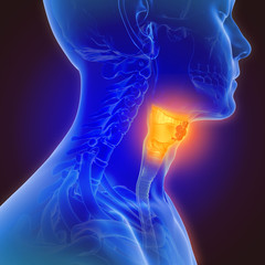 3d illustration of throat cancer