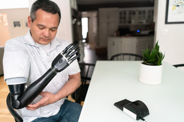Man with charger for his robotic arm