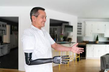 Smiling man with robotic arm