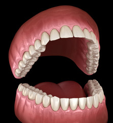 Dental anatomy - Opened Dentures. Medically accurate dental 3D illustration