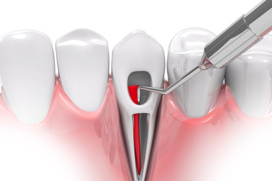 Root canal treatment process. 3d render