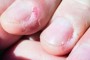 Bitten skin on the fingers