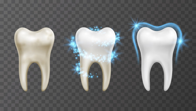 Vector illustration of teeth whitening process - cleaning and protection from stains and bacteria