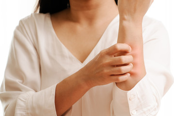 Women hand scratch the itch on arm, healthcare and medicine concept