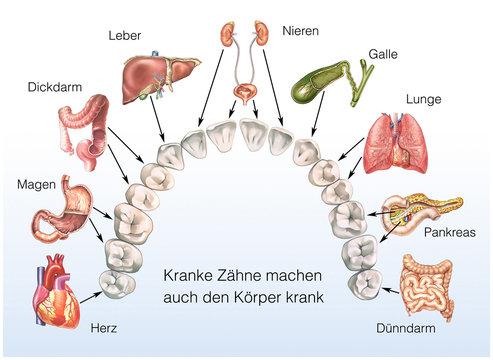 Wie Zähne die Organe beeinflussen können. Kranke Zähne, kranker Körper
