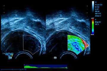 Colourful image of pregnancy ultrasound monitor
