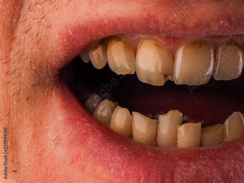 Dental medicine and healthcare - human patient open mouth showing