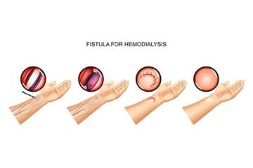 fistula for hemodialysis. suturing of vein and artery