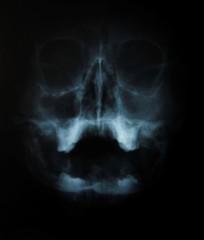 xray of human skull