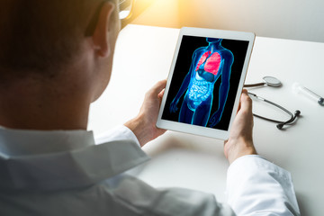 Doctor working with x-ray of lungs on a laptop. Cancer prevention concept