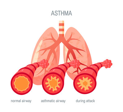 Asthma disease vector icon in flat style