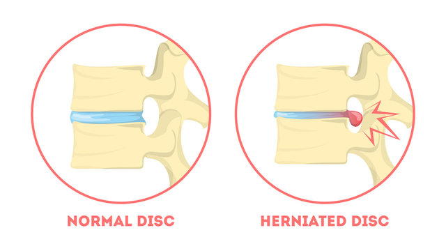 Disc degeneration. Human anatomy. Spine problem. Healthy
