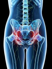 3d rendered illustration of a females inflamed abdominal lymph nodes