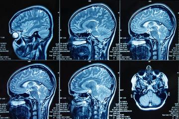 Photograph of magnetic resonance imaging of human brain in sagittal plane. The study use for diagnosis brain tumor  or vertigo