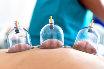 Healing bloodletting, hijama or phlebotomy. Hajam master conducts cupping therapy on a young woman. Islamic medicine