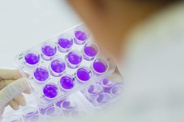 Scientist hand is holding Test plate of Dengue viruses in laboratory