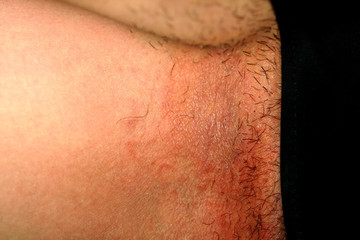 Fungal infection in the groin, Psoriasis, dermatitis, eczema.