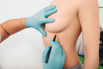 Doctor, Cosmetic surgeon marking woman's breasts, preparing patient for inserting breast silicone implant.