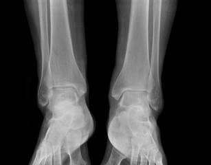 X-ray - Human feet