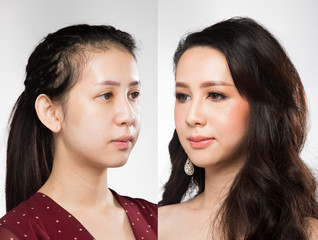 Asian Woman before after applying make up hair style. no retouch comparison left right, fresh face with acne, lips, nice smooth skin. Studio lighting white background, for aesthetics therapy treatment