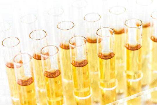 Reagenzgläser mit Flüssigkeit im Labor