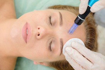 Cosmetologist making mesotherapy injection. Microneedle mesotherapy. Treatment woman at beautician. Hardware cosmetology. Mesotherapy, dermapen, treatment of face zone, face rejuvenation.  Close up