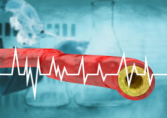 graph with cholesterol test in patient, result with vein and artery with accumulation of fats