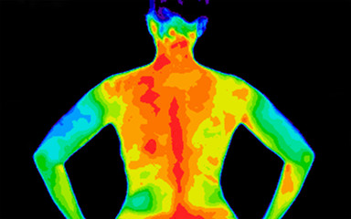 Thermographic photo of the back of the upper body of a woman with the photo showing different temperature in a range of colors from blue showing cold to red showing hot which can be joint inflammation