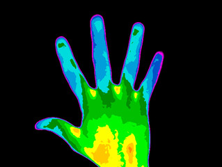 Thermographic photo of the palm of a persons hand, the photo showing different temperature in a range of colors from blue showing cold to red showing hot, blue fingers can indicate multiple sclerosis.