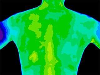 Thermographic image of the upper back of a woman with the photo showing different temperature in a range of blue, green and yellow colours showing blue as cold to yellow as hot could be inflammation