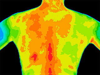 Thermographic photo of the upper back of a woman with the photo showing different temperature in a range of colors from blue showing cold to red showing hot which can indicate joint inflammation.