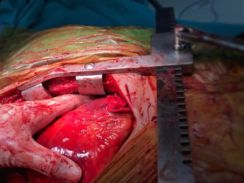 The heart was showed after emergency open surgery because patient was stabbed to heart then surgeon was massaging cardiac. A surgeon was stop bleeding by gauze suture.