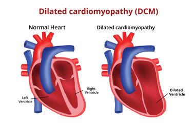 Dilated cardiomyopathy, Heart disease, Vector image