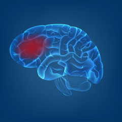 isolate of 3D of human brain with migraine headache image in digital blue background. concept for MRI scan for medical healthcare or human body scientific in vector illustration