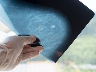 Mammography. The doctor's hand holding the pictures. The doctor examines the pictures in the patient's room.