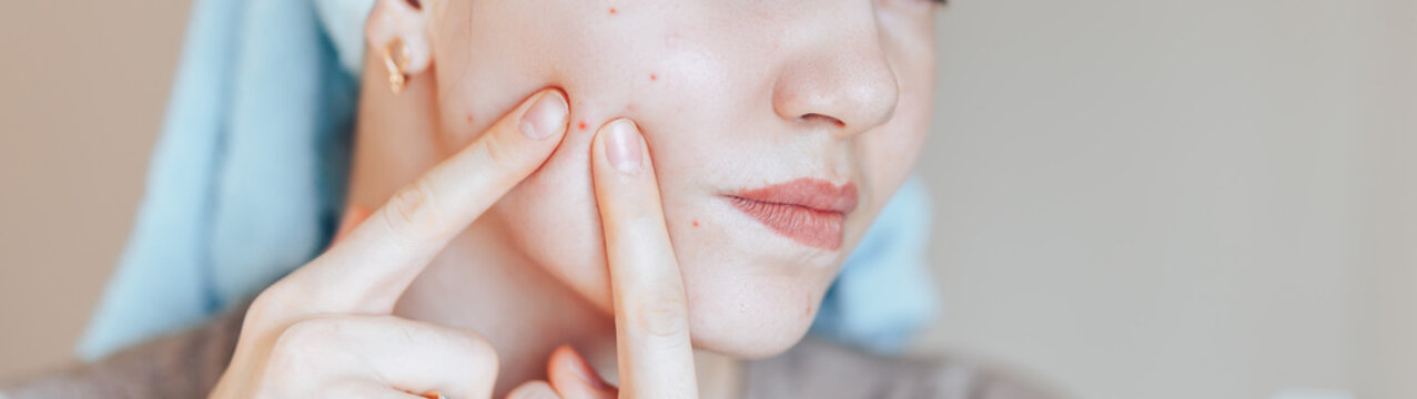 Teenage girl squeezing her pimples, removing pimple from her face. Woman skin care concept photos of ugly problem skin girl on beige background.
