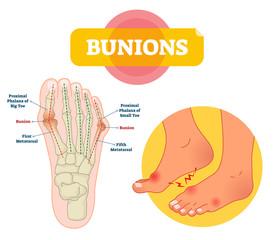 Bunions vector illustration. Labeled feet bone disorder explanation scheme.