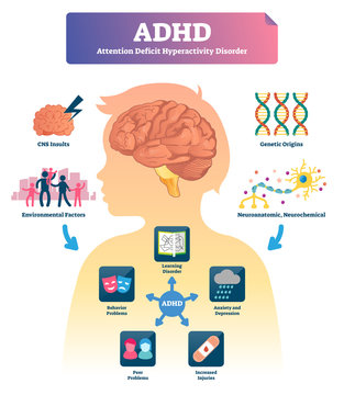 ADHD vector illustration. Labeled mind attention deficit disorder scheme.