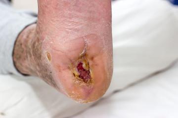 ulcer on a diabetic foot