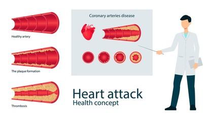 Vector atherosclerosis vein artery throms flat set