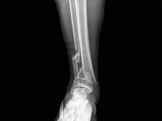 x-ray of a fracture human bone