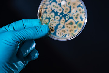 petri dish with microbe colony in doctor hand