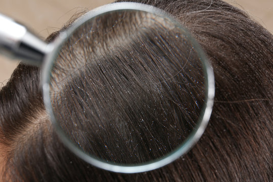 Closeup of woman with dandruff in her hair, view through magnifying glass