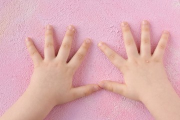White baby hands affected by the wart with selective focus on blurred pink background. Papillomavirus on kids skin. Warts disease in a child's hand and fingers. Pediatric dermatology. Skin diseases
