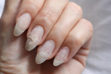 Damage of the nail after using shellac.
