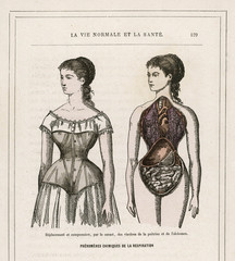 What Corsets Do