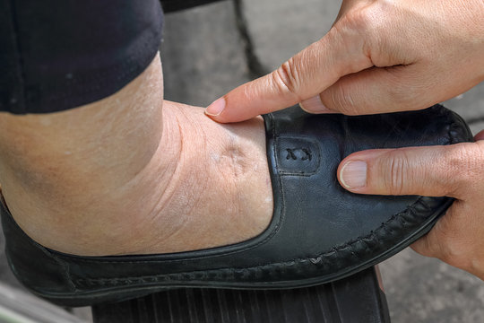 Swelling of ankles and feet test by pushing finger on swollen area will appear a pit.