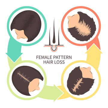 Female pattern hair loss set. Stages of baldness in women. Androgenetic alopecia infographic medical vector template for clinics and diagnostics centres.